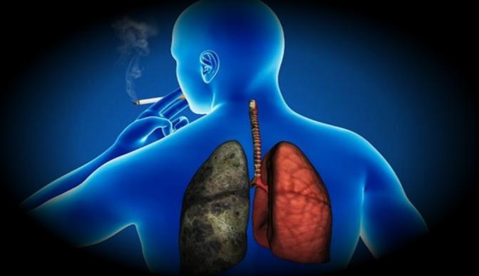 Cáncer de pulmón, entre las enfermedades más estigmatizadas en México